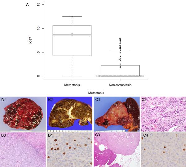 Ki-67 proliferative index and representative cases of SPNs with metastasis.