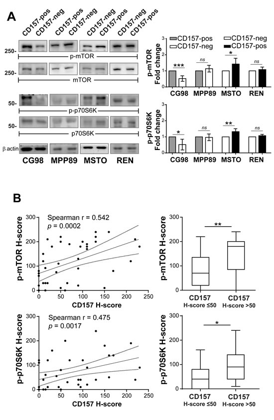 Linking CD157 expression with mTOR activation in biphasic MPM.