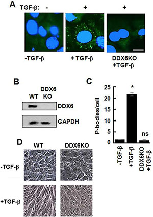 Lack of TGF-β-induced EMT in DDX6-deficient 4T1 cells.