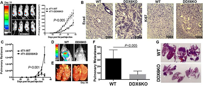 DDX6 is important for metastasis.