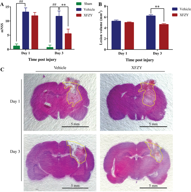 Effects of XFZY on modified neurologic severity score and lesion volume in rats post-CCI on day 1 and day 3.