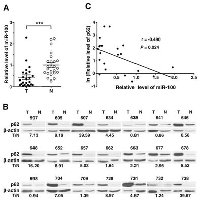 The altered expression of miR-100 and p62 in HCC tissues.