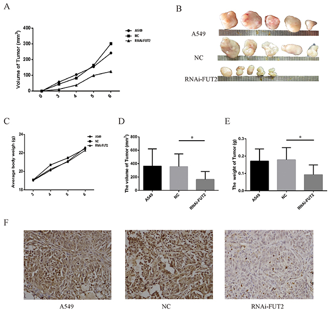 Effect of down-regulation of FUT2 on tumor growth in vivo.