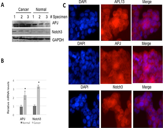 APL13, APJ, and Notch3 are overexpressed in human colon adenocarcinoma.
