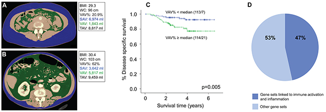 Low visceral fat percentage is associated with better disease-specific survival and enrichment of immune and inflammation related gene sets in endometrial tumors.