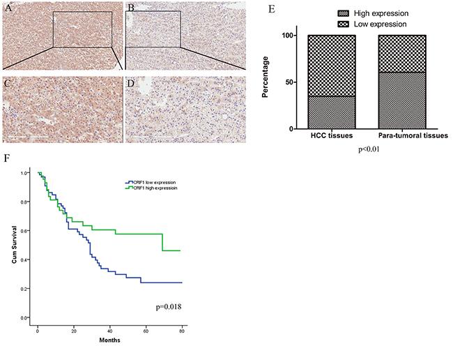 Immunohistochemical staining and prognosis value of CRIF1.