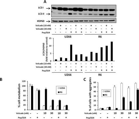 Inhibition of lysosomal degradation restores sensitivity to velcade in R6 cells.