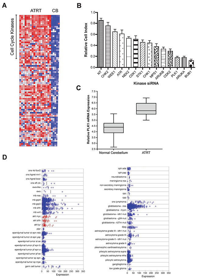 Microarray gene expression analysis and a genome-wide RNAi screens for kinases regulating ATRT cell proliferation: PLK1 identified as a potential target.