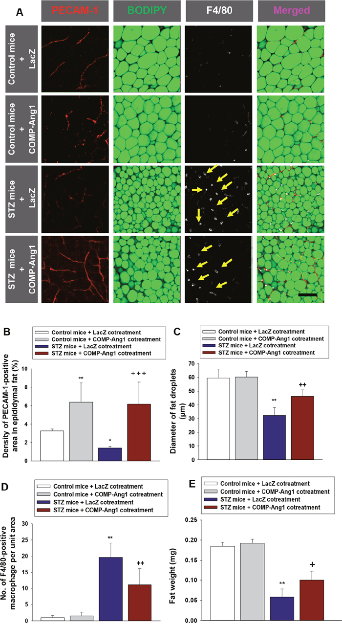 Changes of vascular endothelial cells, fat droplets and macrophage infiltration in adipose tissue.