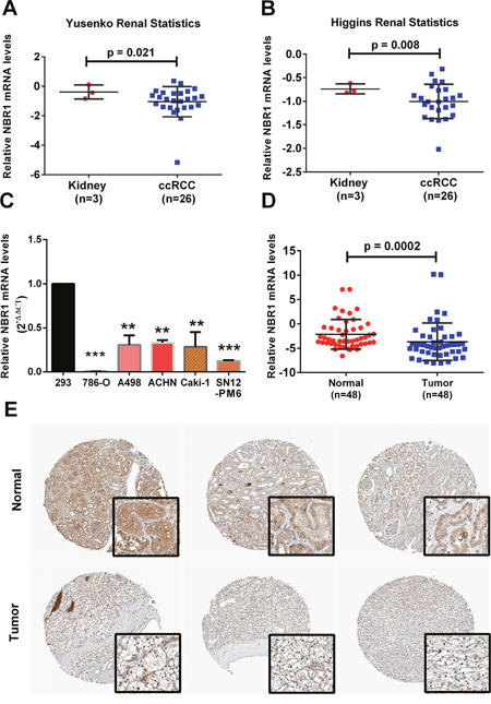 NBR1 is downregulated in ccRCC cells and tissues.