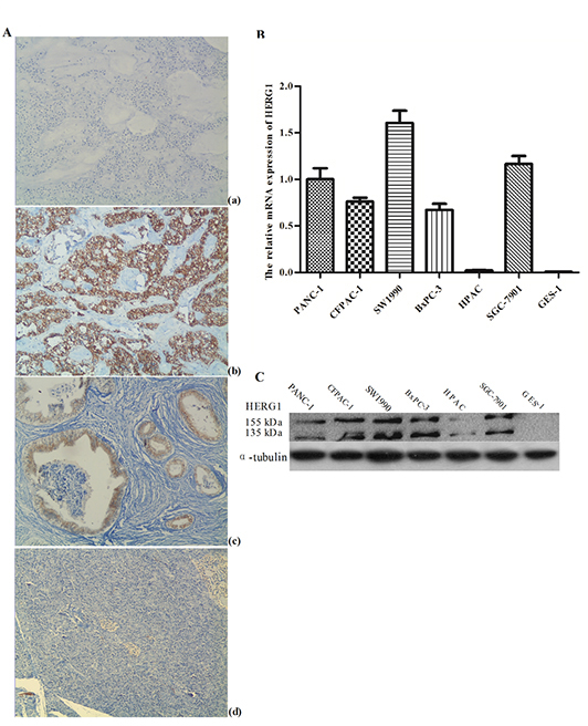 HERG1 was highly expressed both in pancreatic tumor tissues and cell lines.
