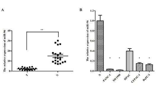 MiR-96 expression in pancreatic cancer tissues and cell lines.