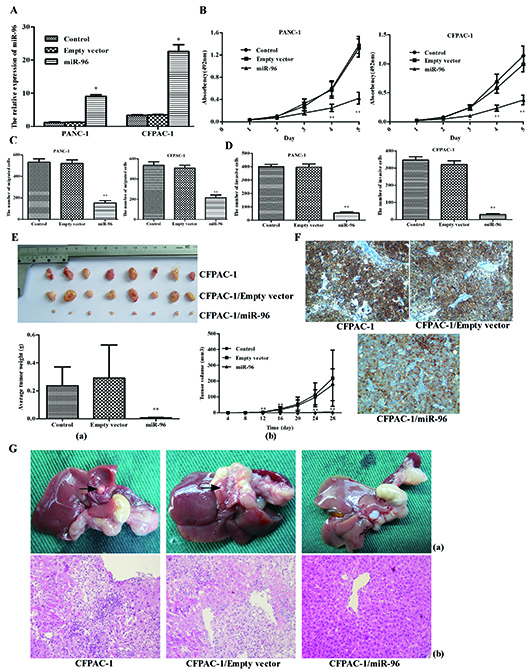 Overexpression of miR-96 inhibits pancreatic cancer cell growth, migration, invasion in vitro, suppresses tumorigenicity, metastasis and contrasts with HERG1 expression in vivo.