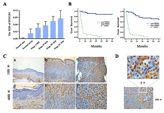 Increased expression of HMGB1 is correlated with the progression of human cutaneous melanoma and poor patient survival.