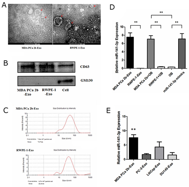 Characterization of exosomes and expression of miR-141-3p.
