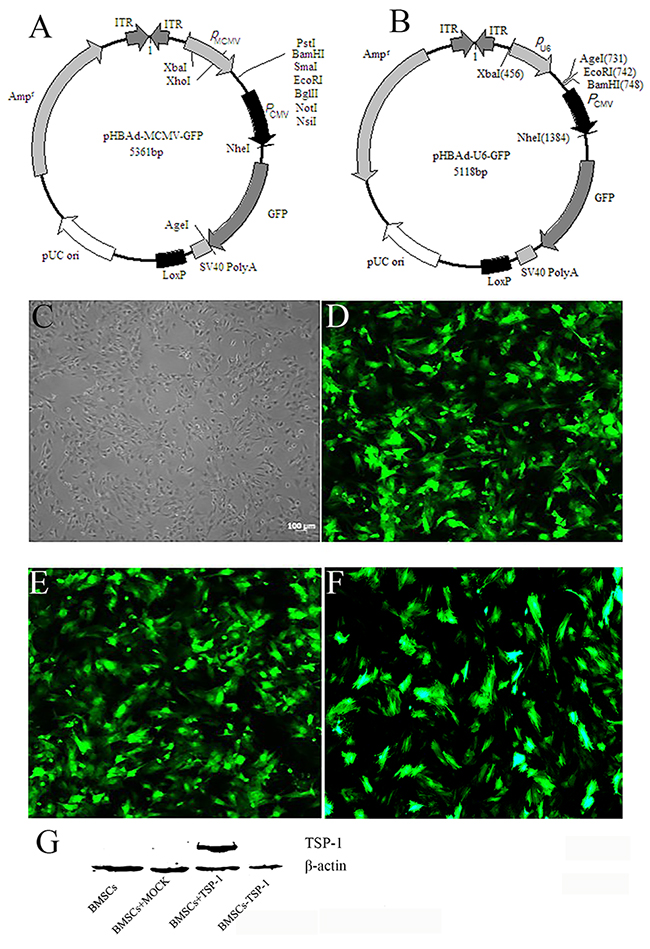 TheTSP-1 and TSP-1 siRNA plasmid construction and expression.