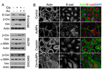 AuNP reverses cisplatin-induced EMT.