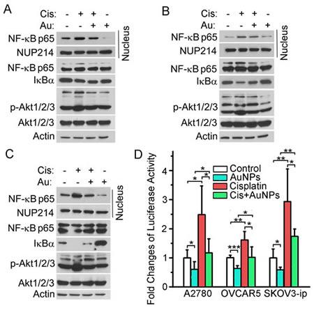 AuNPs inhibit the Akt/NF-κB signaling.