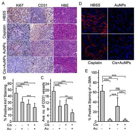 AuNP treatment inhibits tumor cells proliferation, blood vessels formation and EMT