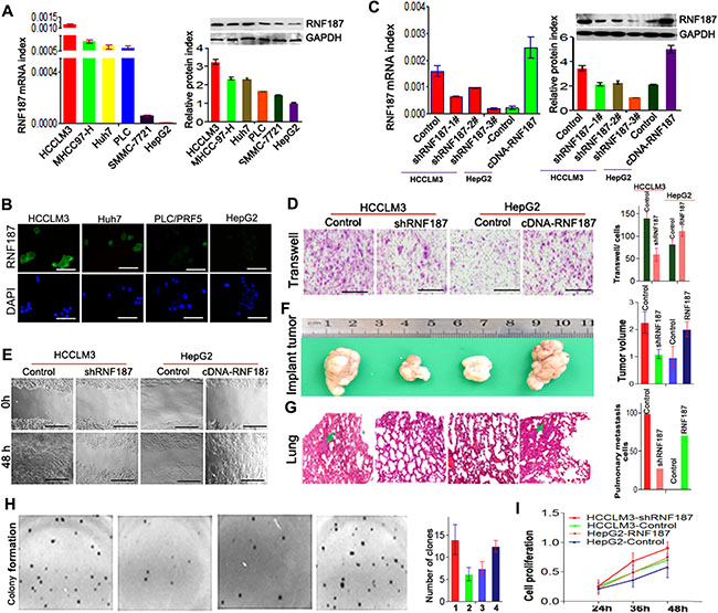 High level of RNA187 promote HCC cells invasion and metastasis both in vitro and in vivo.