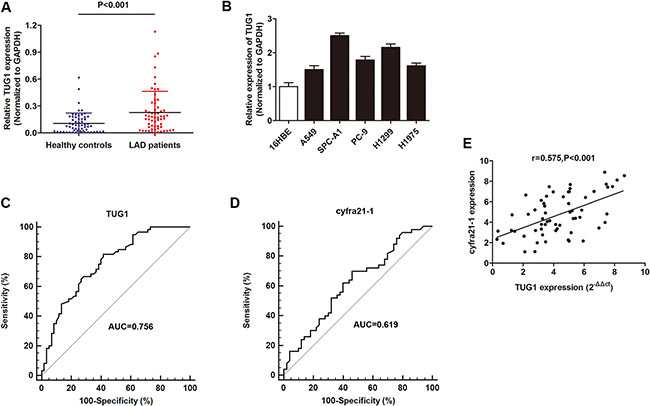 The investigation of lncRNA TUG1 as a diagnostic marker for LAD patients.