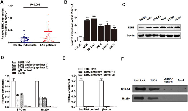 TUG1 directly interacted with EZH2 in LAD cells.