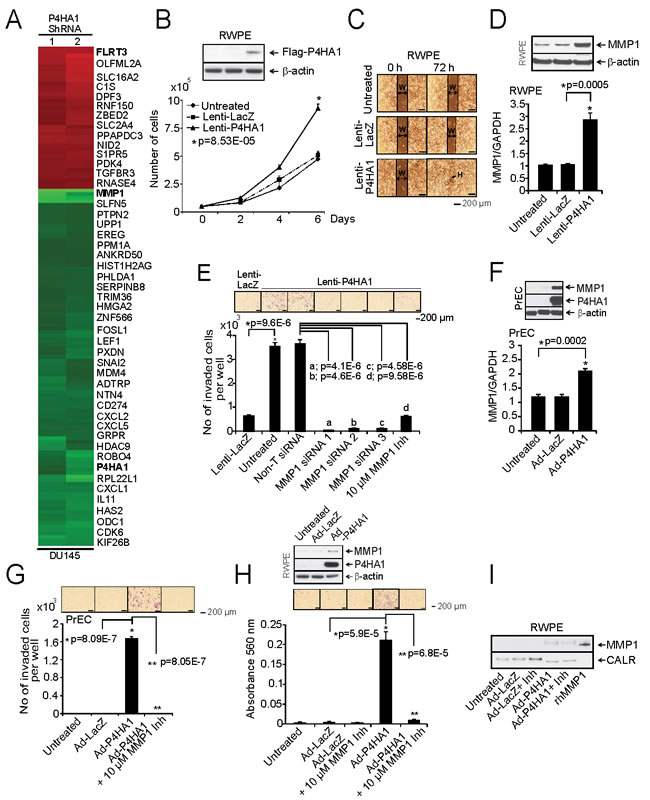 Over-expression of P4HA1 increases cell proliferation and invasion.