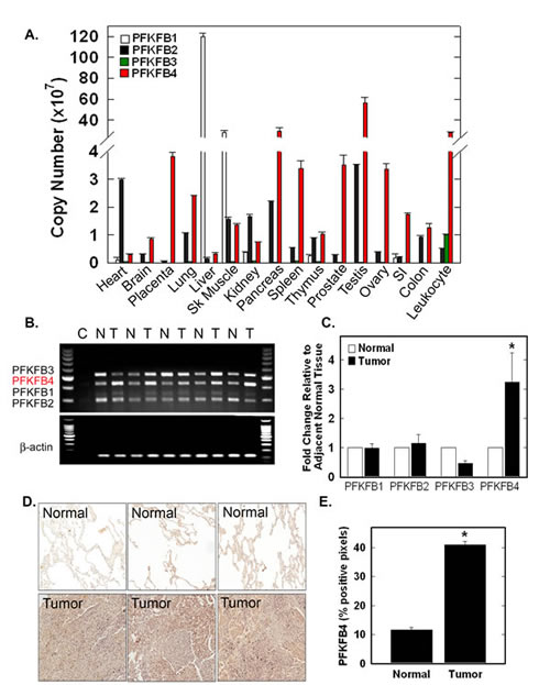 PFKFB4 Is Expressed in Multiple Normal Tissues and Over-Expressed in Human Lung Adenocarcinomas.