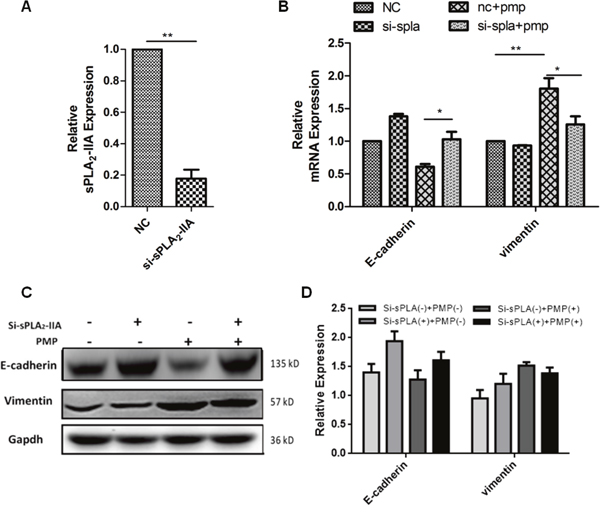 sPLA2-IIA induces the internalization of PMPs by ovarian cancer cells.