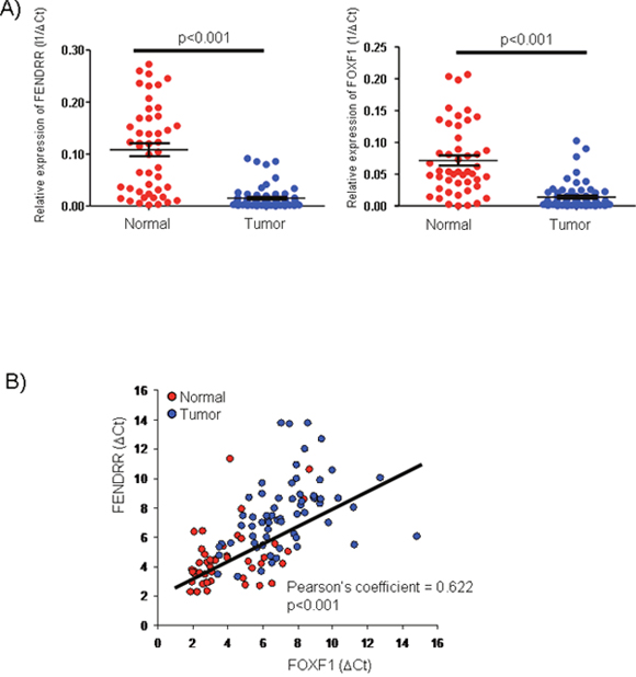 FENDRR and FOXF1 mRNAs are significant biomarkers of lung adenocarcinoma (LUAD).