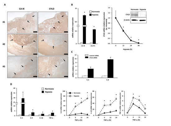 Effects of hypoxia on expression of CYLD and proinflammatory cytokines in GBM cells.