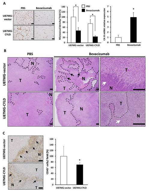 Effects of chronic bevacizumab treatment on histology of GBM xenografts.