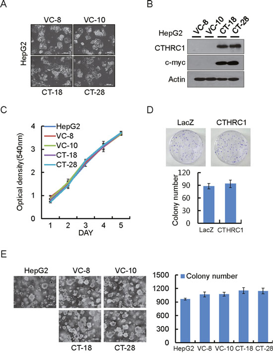 Proliferation ability of HepG2 cells by ectopic expression of CTHRC1.