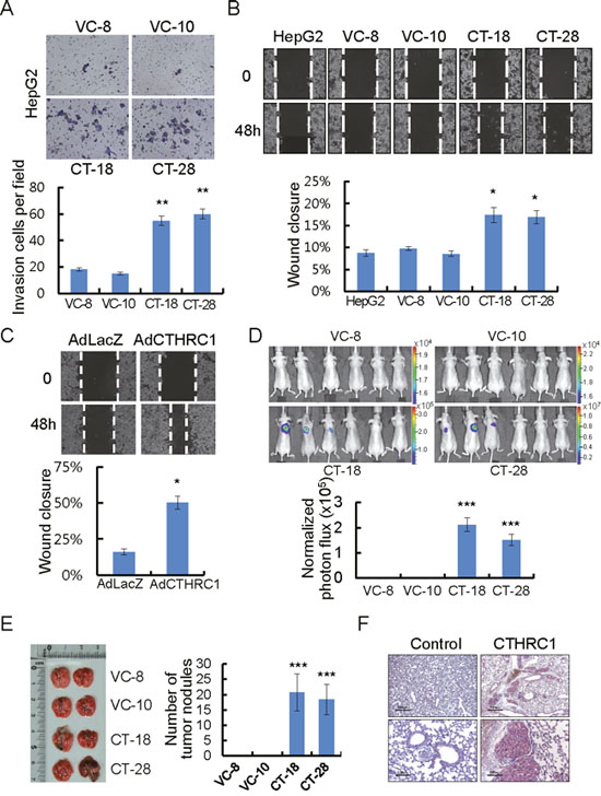 CTHRC1-mediated promotion of invasion and migration in HCC cells.