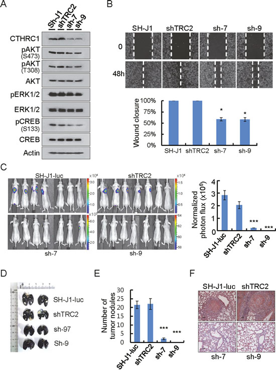 CTHRC1-mediated promotion of invasion and metastasis in vitro and in vivo.