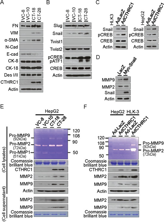 CTHRC1-mediated EMT characteristics and MMP expression.
