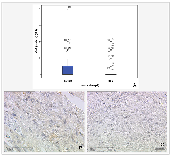 Correlation of cervical tumor size with LCoR IRS staining.