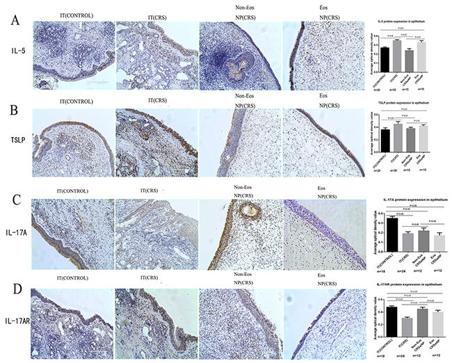 IL-5, TSLP, IL-17A and IL-17A receptor (IL-17AR)expression in epithelial cells derived from all four groups: inferior turbinate (IT) of control, inferior turbinate (IT) of chronic rhinosinusitis with nasal polyps (CRS)eosinophilic (Eos) and noneosinophilic (Non-Eos) chronic rhinosinusitis with nasal polyps NP(CRS) groups.