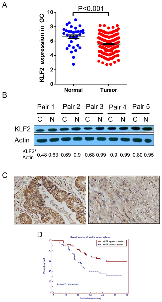 KLF2 is downregulated in human GC and its expression level is correlated with patients' survival.