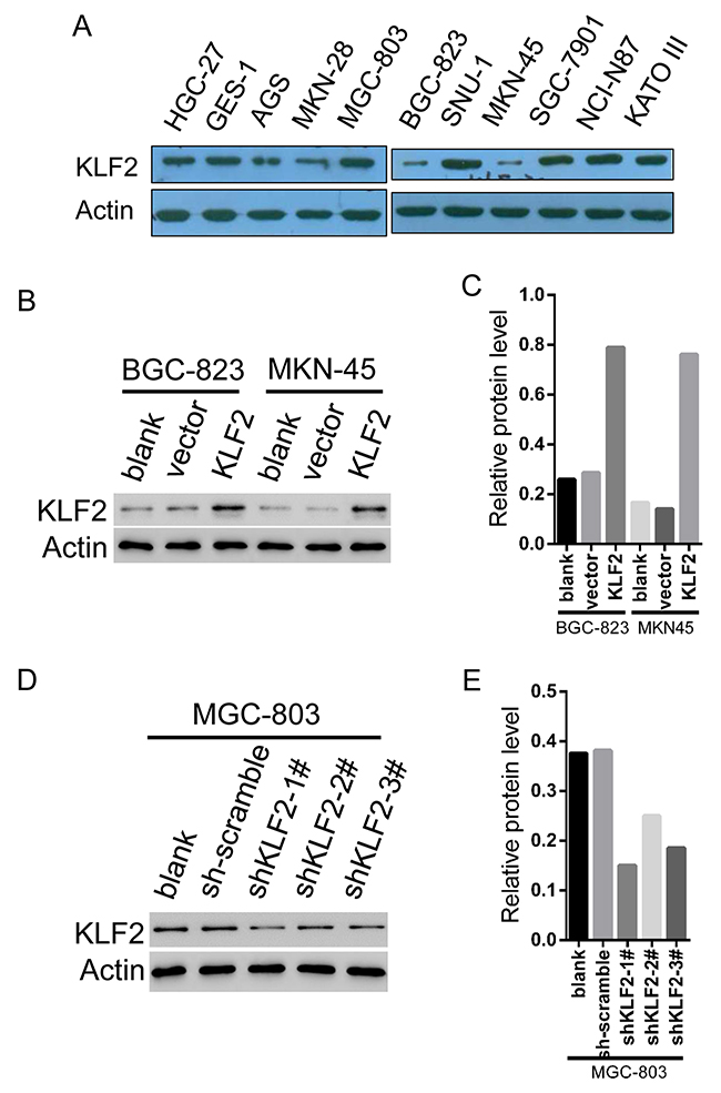 The establishment of stable KLF2 overexpressing and knockdown GC cell lines.