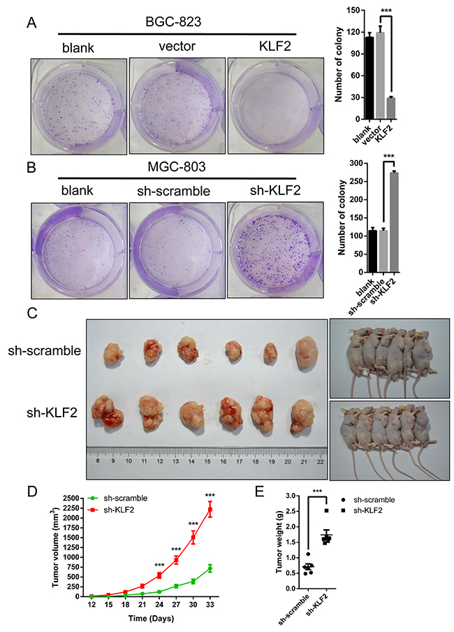 KLF2 suppresses cell growth in vitro and gastric tumor formation in vivo.