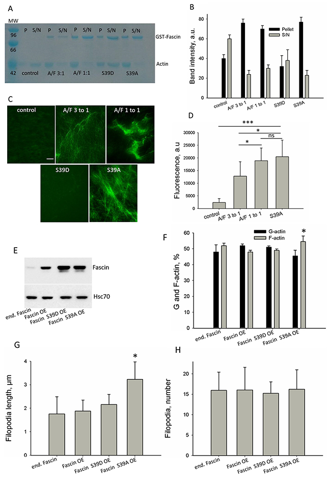 Effect of fascin on actin dynamics in a cell-free system and in cells.