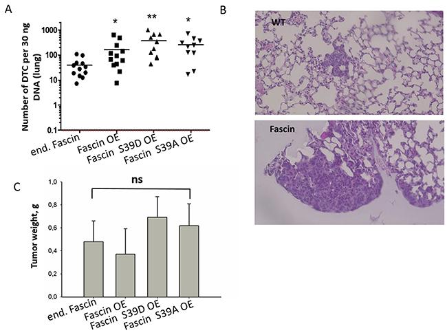 Fascin hyperexpression increases metastasis independently of its actin bundling activity.