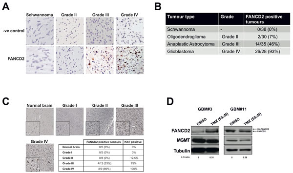 The FA pathway is highly expressed and active in high-grade gliomas, with FANCD2 expression associated with tumour grade.