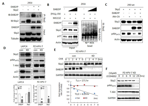 Figure 4 : The effect of DAB2IP on Skp2 protein expression mediated through Akt (A) 293J cells were transfected with plasmids carrying