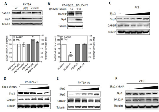 Inverse correlation between DAB2IP and Skp2 expression in prostatic cells.