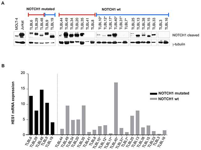 NOTCH1 pathway activation in T-LBL primary tumors.