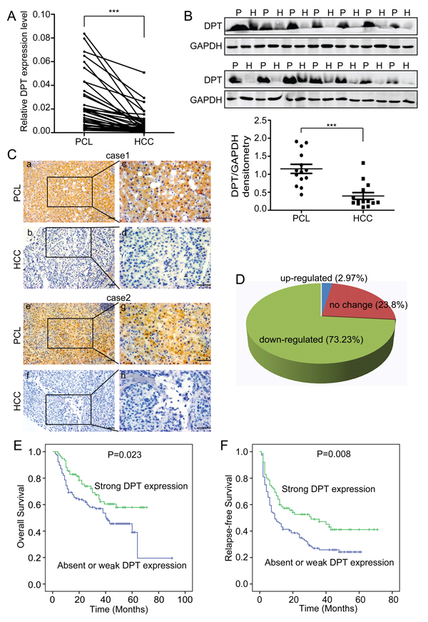 DPT is down-regulated and closely related to patient prognosis in hepatocellular carcinoma (HCC).