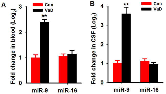 MiR-9-5p is upregulated in the serum and CSF of patientswith VaD.