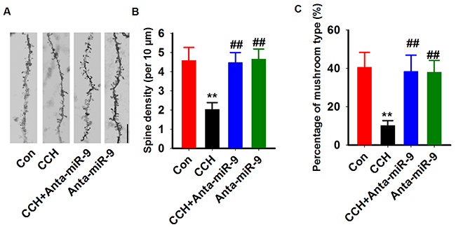 Inhibition of miR-9-5p rescued the dendritic spines abnormalities in CCH rats.